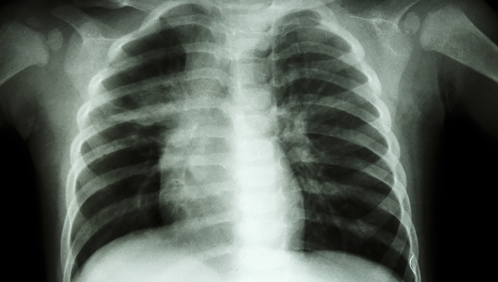 Россия стала мировым лидером в борьбе с туберкулезом