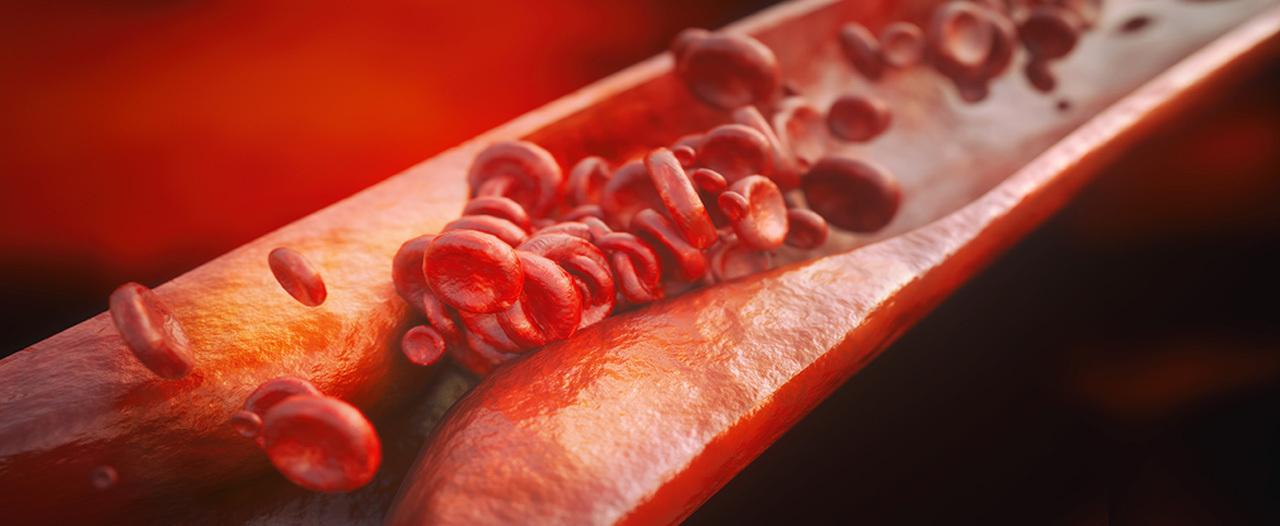 Российские ученые открыли гены атеросклероза