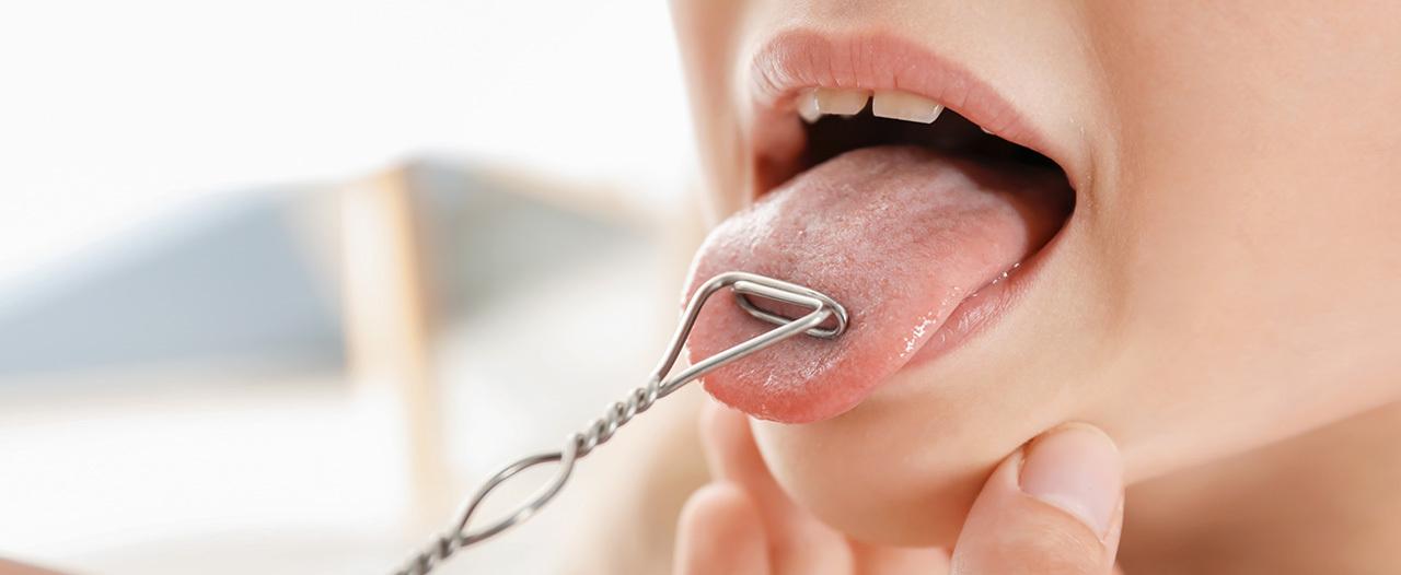Пациентке заменили часть языка тканью с предплечья