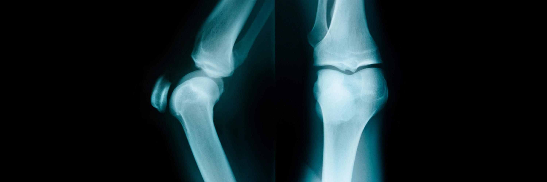 Инновации в лечении коленных суставов