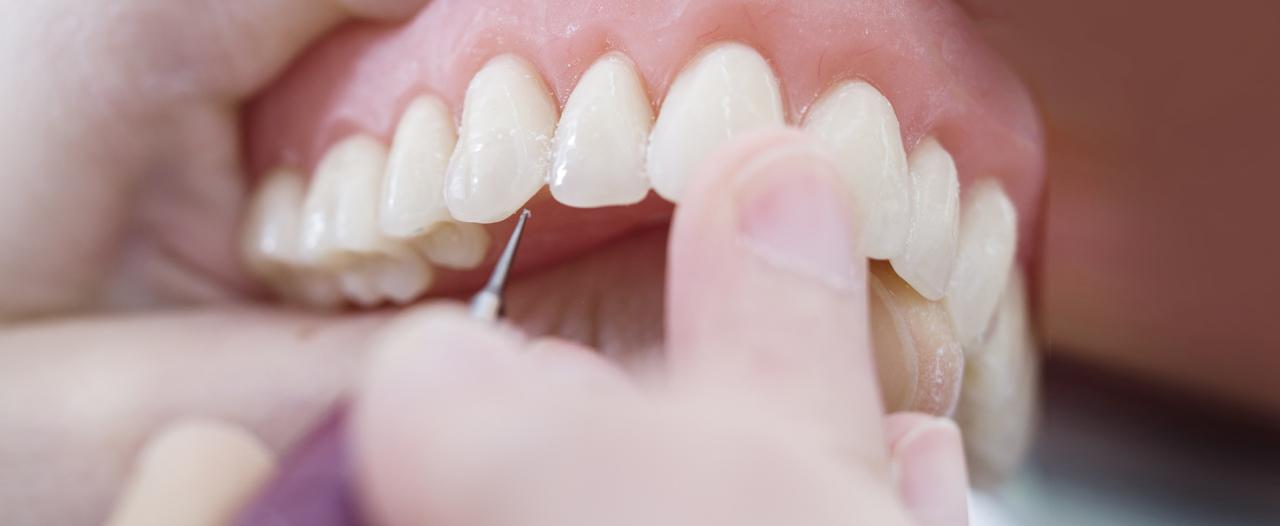 Хирурги восстановили челюсть без единого разреза