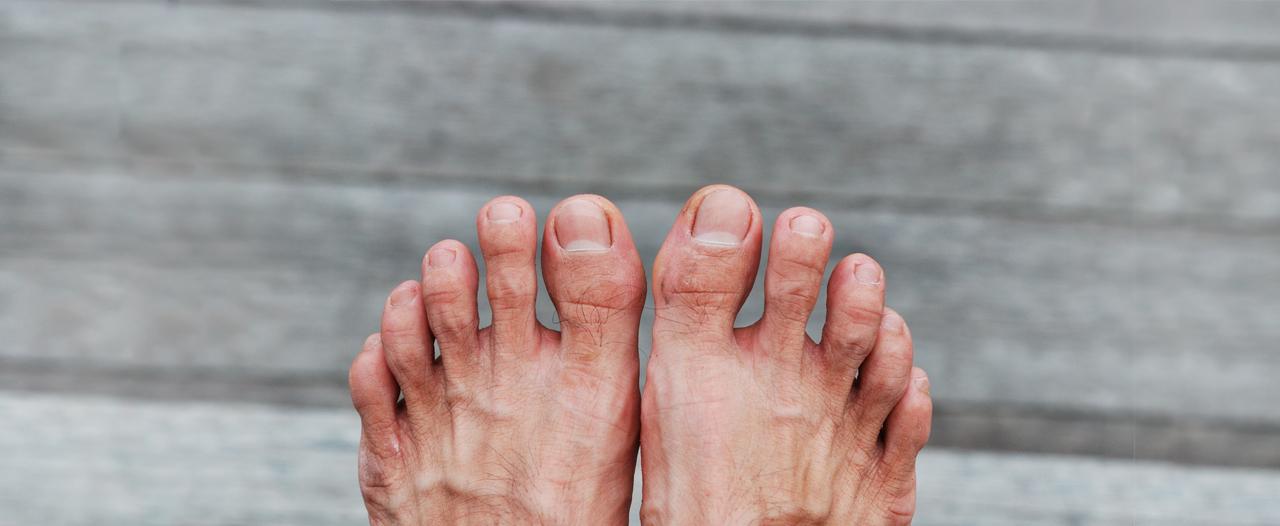 Казанские врачи помогают пациентам твердо стоять на ногах