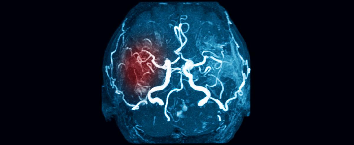МРТ мозга с контрастом: каждому — по потребности