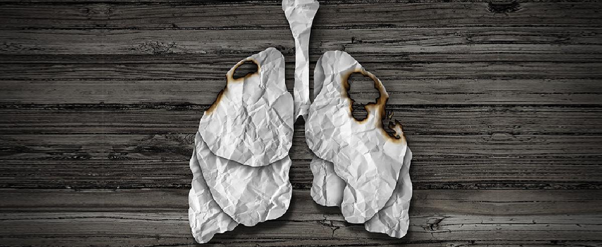 Невыносимость бытия легких курильщика