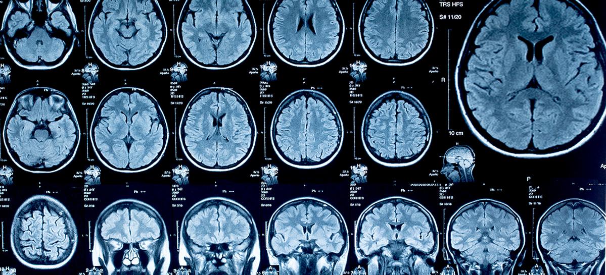 Томские ученые планируют внедрить новый метод МРТ мозга