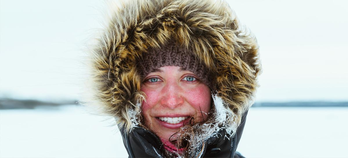 Аллергия на холод: заболеть можно даже летом