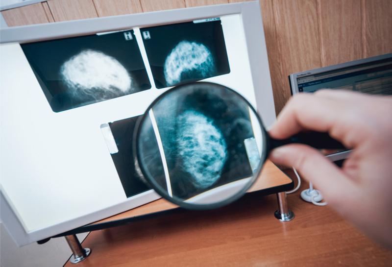 На борьбу с раком в России выделят триллион рублей