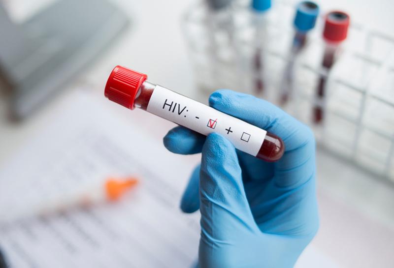 Врачи второй раз в истории добились ремиссии у пациента с ВИЧ