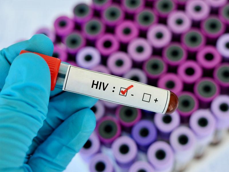 Калмыкия подтвердила статус региона с низким уровнем инфицирования ВИЧ