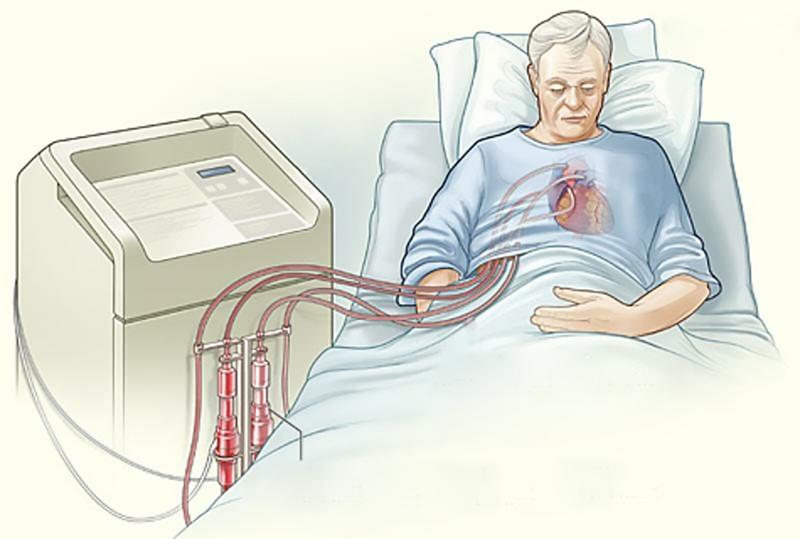Один из первых искусственных желудочков (VAD)