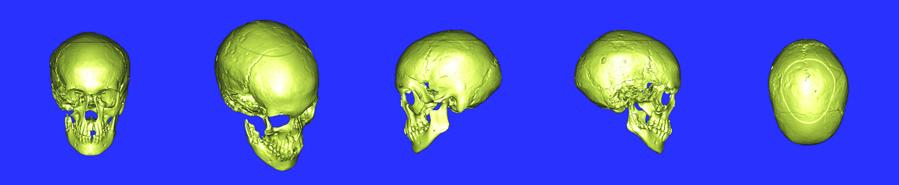 Проекции компьютерной модели черепа великой княжны Анастасии. Фото из архива ИПЛИТ РАН.