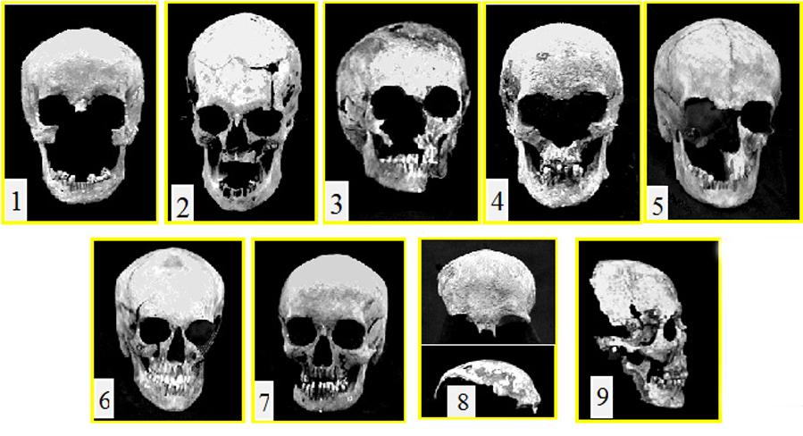Материалы работ по идентификации останков царской семьи в 1995—1998 годах. Препараты девяти черепов скелетов №№ 1—9. Фото из архива А.С. Абрамова.